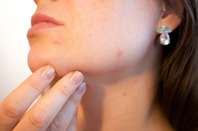 How to Get Rid of Blemishes Overnight
