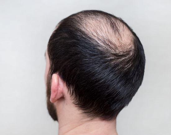 What Are the Main Types of Baldness