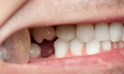 4 Effective Ways to Replace a Missing Tooth