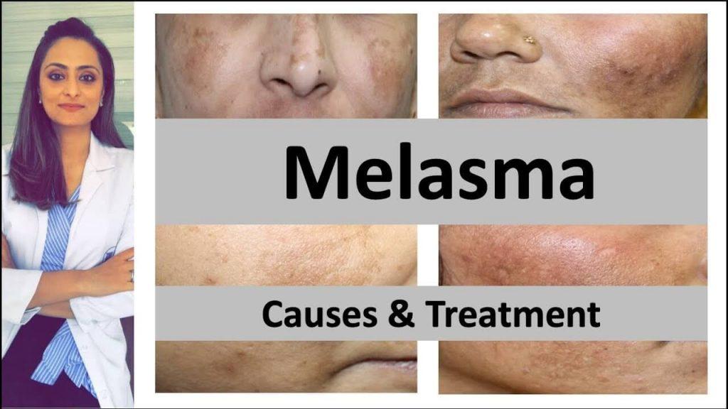Treatment to Get Rid of Melasma