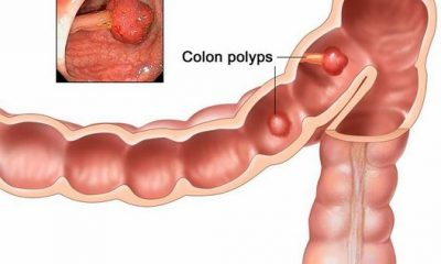 How Can We Detect Colon Cancer Early