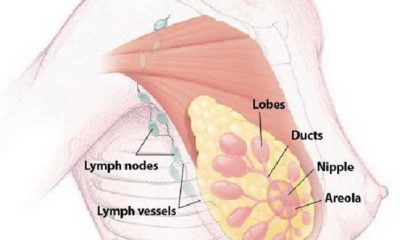 Discussing various types of breast cancer