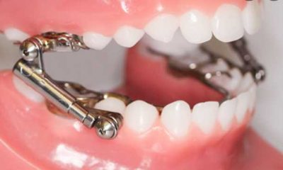 Five Tips for Cleaning Dental Appliances