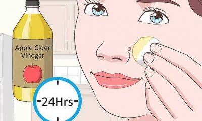 facial wart removal
